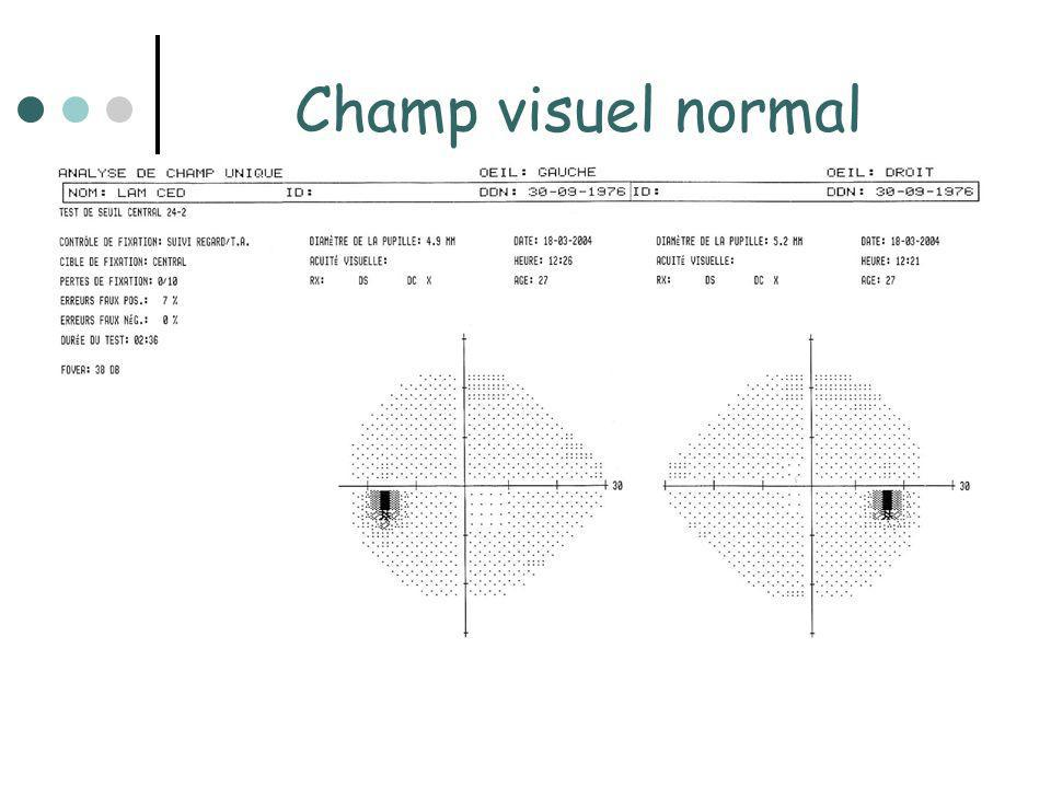 Champ visuel normal