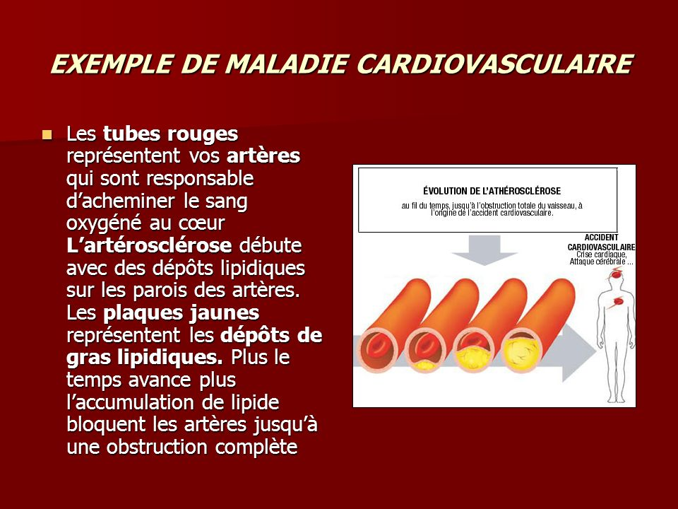 EXEMPLE DE MALADIE CARDIOVASCULAIRE