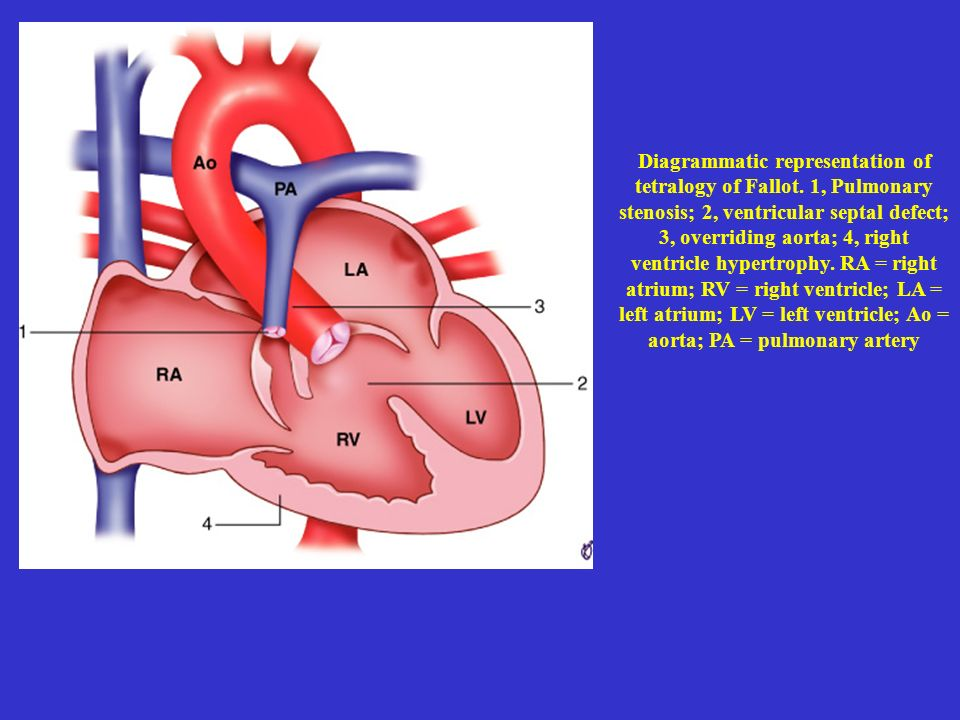 Diagrammatic representation of tetralogy of Fallot