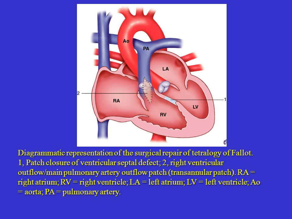 Diagrammatic representation of the surgical repair of tetralogy of Fallot.