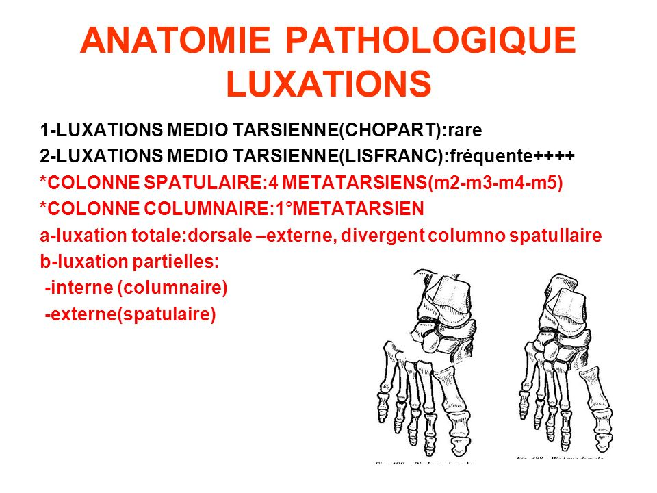 ANATOMIE PATHOLOGIQUE LUXATIONS