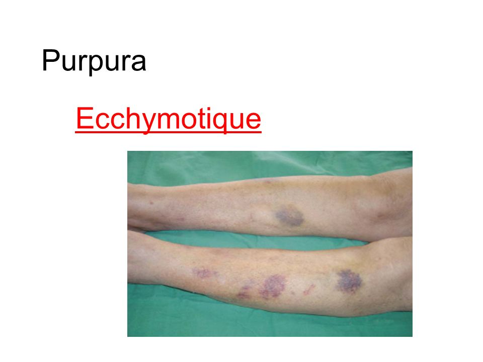 Purpura Ecchymotique