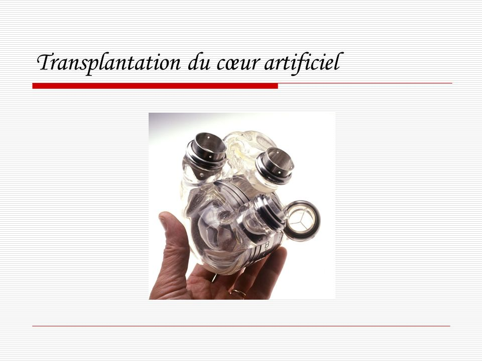 Transplantation du cœur artificiel