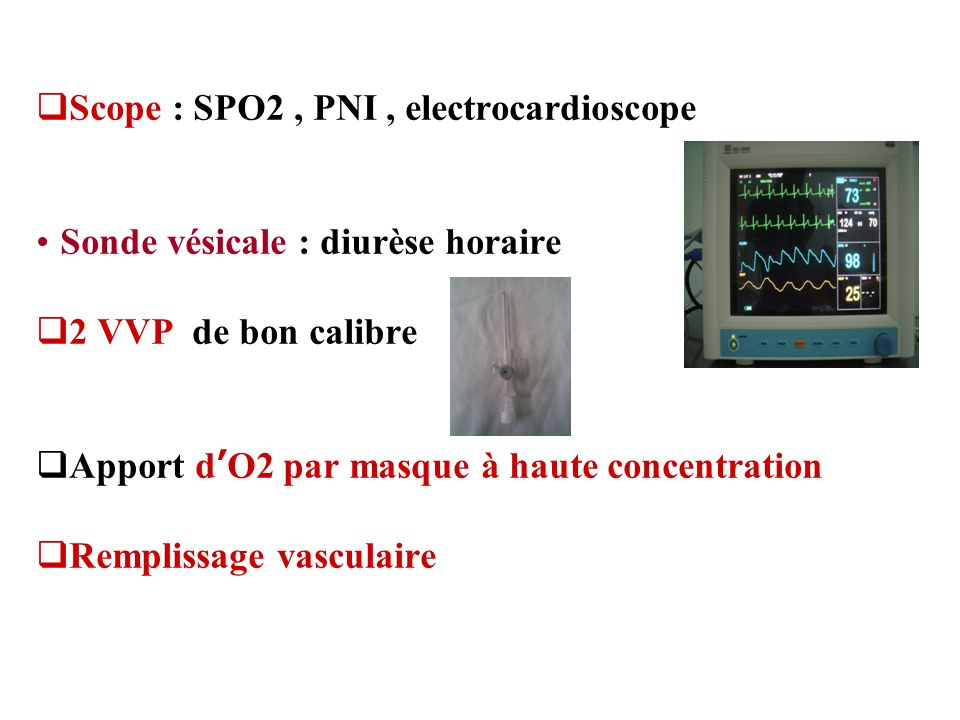 Scope : SPO2 , PNI , electrocardioscope