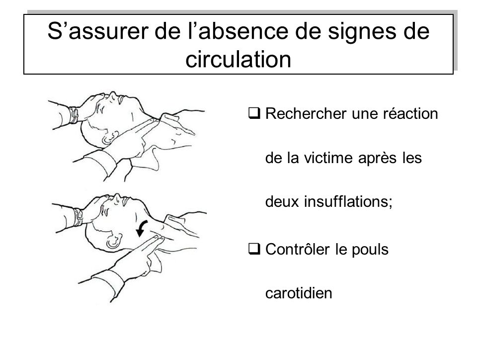 S'assurer de l'absence de signes de circulation