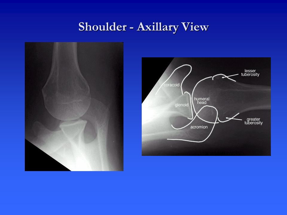 Shoulder - Axillary View