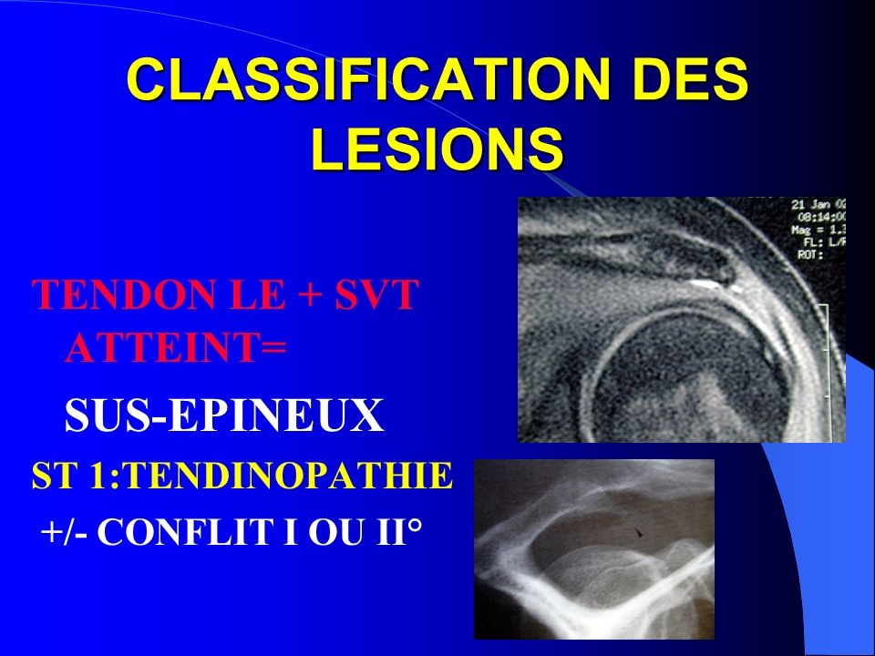 CLASSIFICATION DES LESIONS