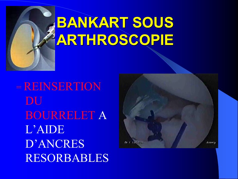 BANKART SOUS ARTHROSCOPIE