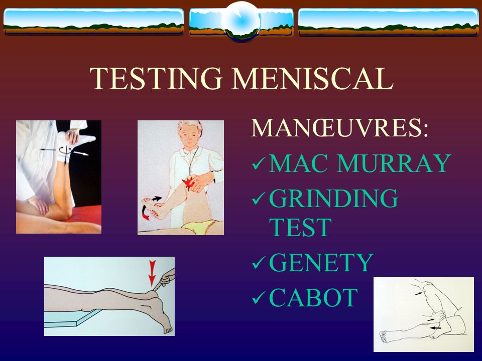 TESTING MENISCAL MANŒUVRES: MAC MURRAY GRINDING TEST GENETY CABOT