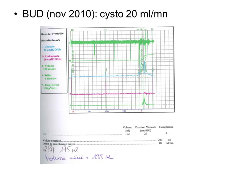 BUD (nov 2010): cysto 20 ml/mn