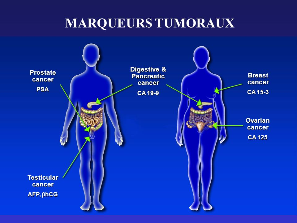 MARQUEURS TUMORAUX Digestive & Prostate Pancreatic cancer Breast