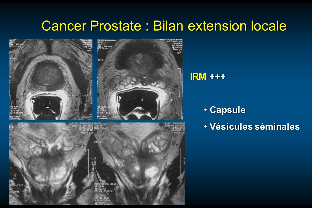 Cancer Prostate : Bilan extension locale