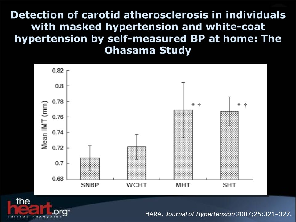 Detection of carotid atherosclerosis in individuals with masked hypertension and white-coat hypertension by self-measured BP at home: The Ohasama Study