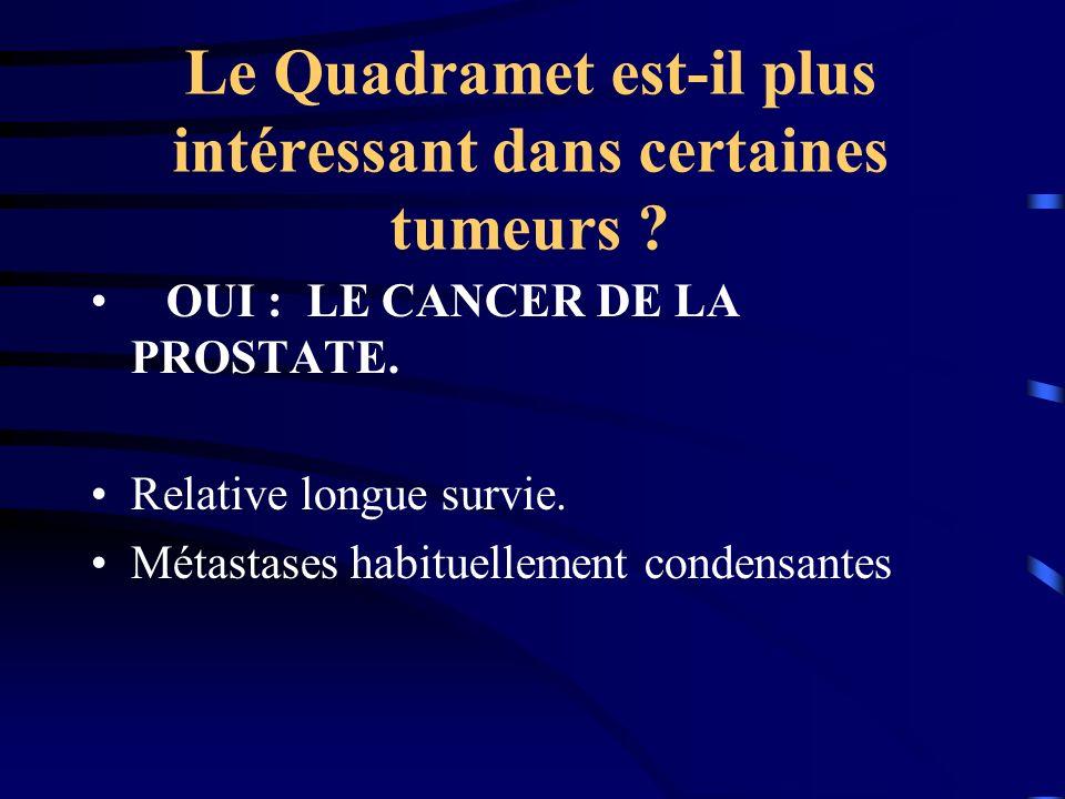 dr mohamed triki radiotherapie metabolique metastases osseuses ppt t l charger. Black Bedroom Furniture Sets. Home Design Ideas