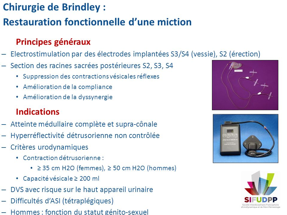 Chirurgie de Brindley : Restauration fonctionnelle d'une miction