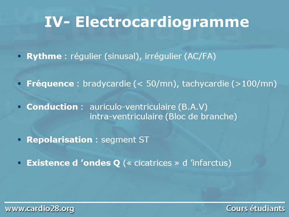 IV- Electrocardiogramme