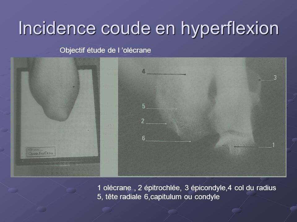 Incidence coude en hyperflexion