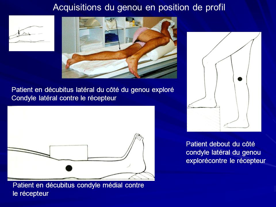 Acquisitions du genou en position de profil