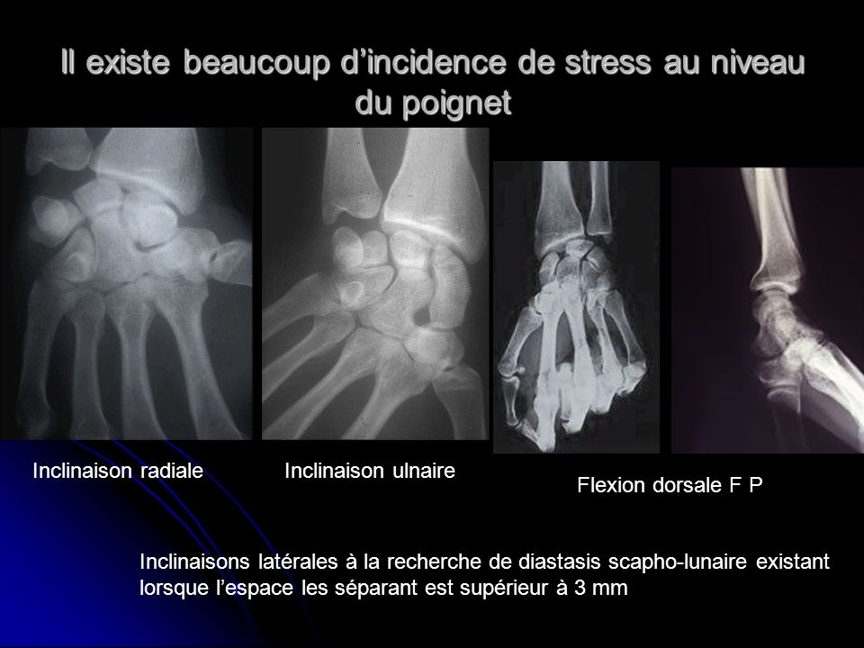 Il existe beaucoup d'incidence de stress au niveau du poignet