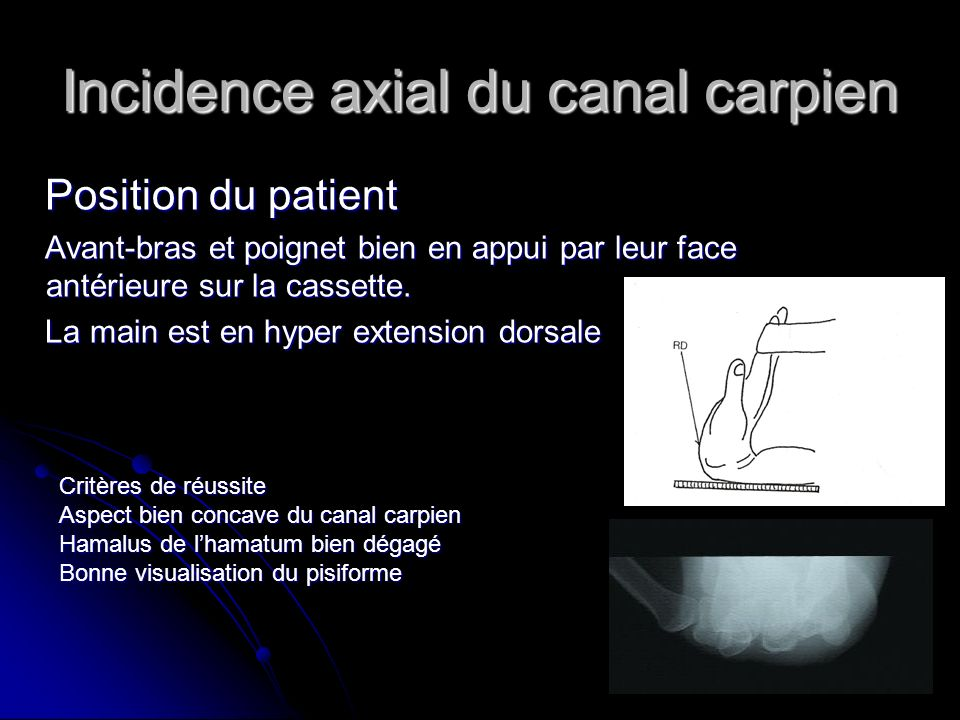 Incidence axial du canal carpien