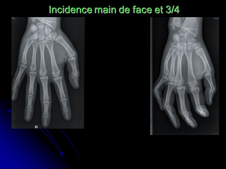 Incidence main de face et 3/4