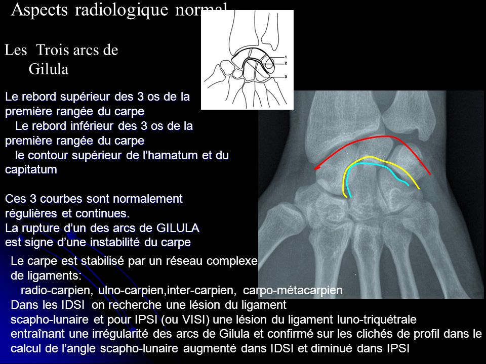 Aspects radiologique normal