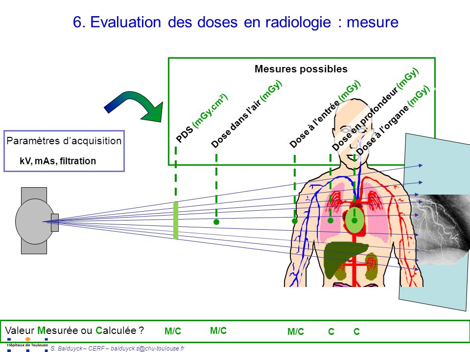 6. Evaluation des doses en radiologie : mesure