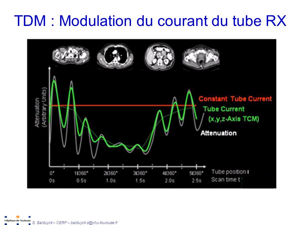 TDM : Modulation du courant du tube RX