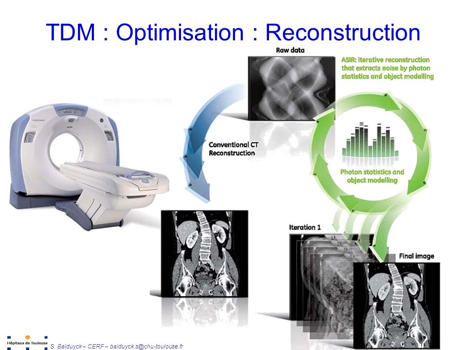 TDM : Optimisation : Reconstruction