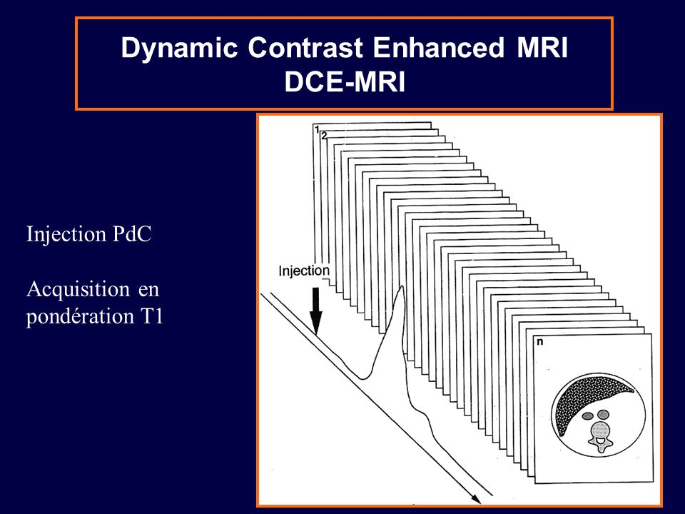 Dynamic Contrast Enhanced MRI DCE-MRI
