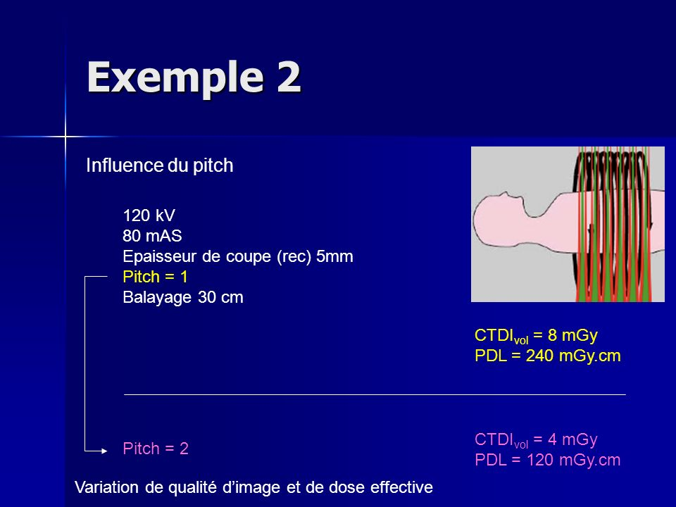 Exemple 2 Influence du pitch 120 kV 80 mAS