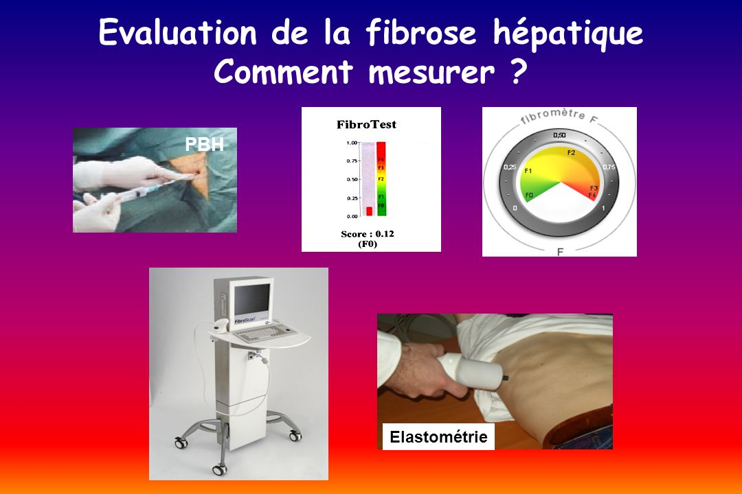 Evaluation de la fibrose hépatique Comment mesurer