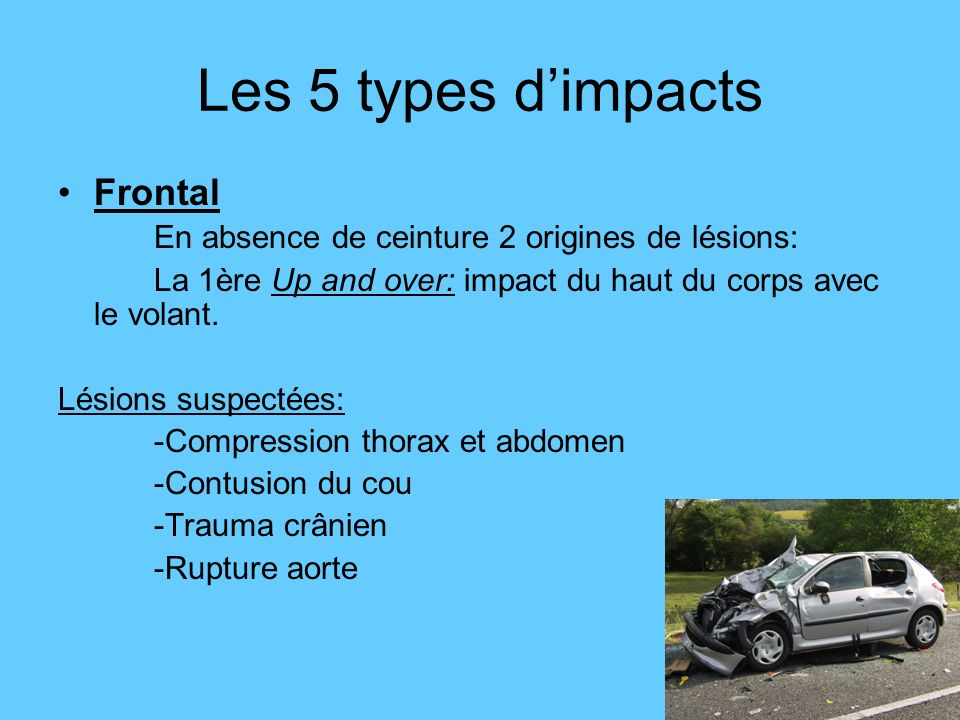 Les 5 types d'impacts Frontal