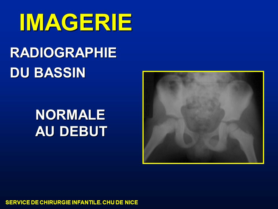 IMAGERIE RADIOGRAPHIE DU BASSIN NORMALE AU DEBUT