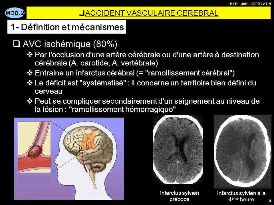 ACCIDENT VASCULAIRE CEREBRAL