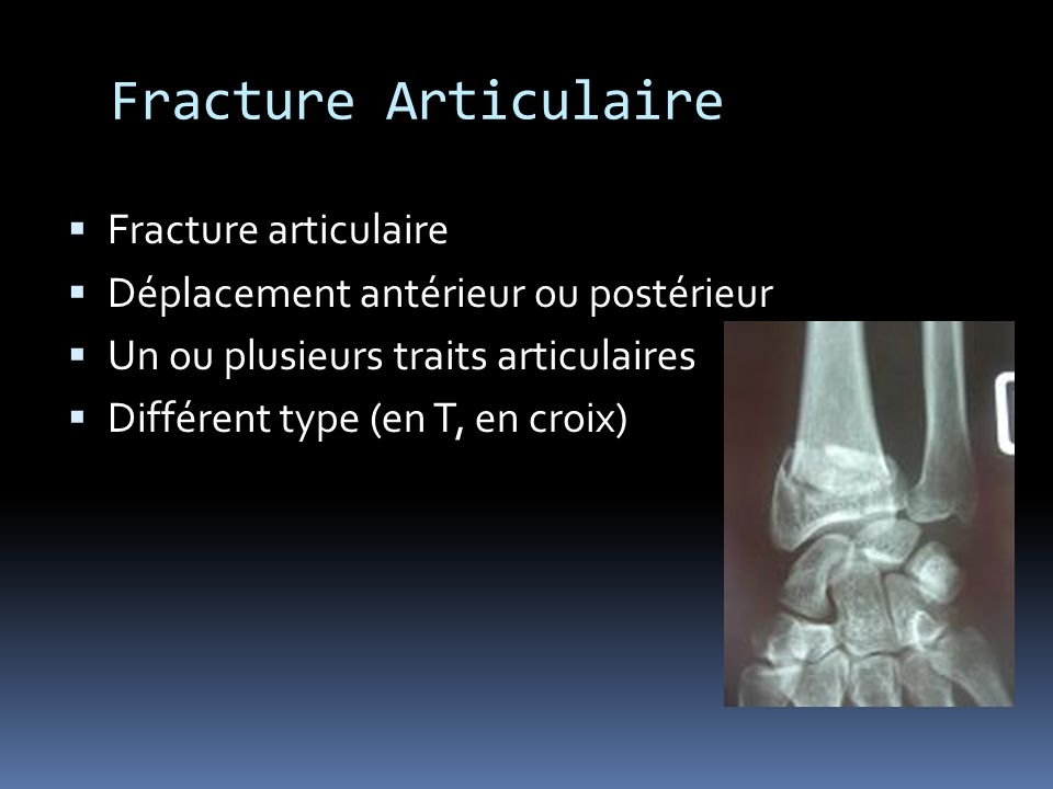 Fracture Articulaire Fracture articulaire