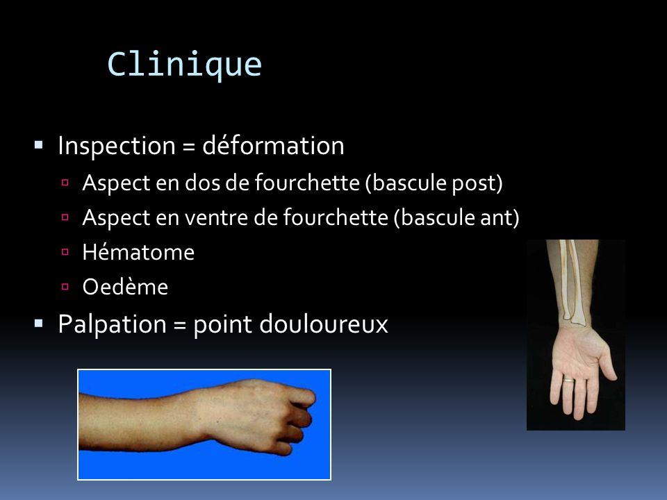 Clinique Inspection = déformation Palpation = point douloureux