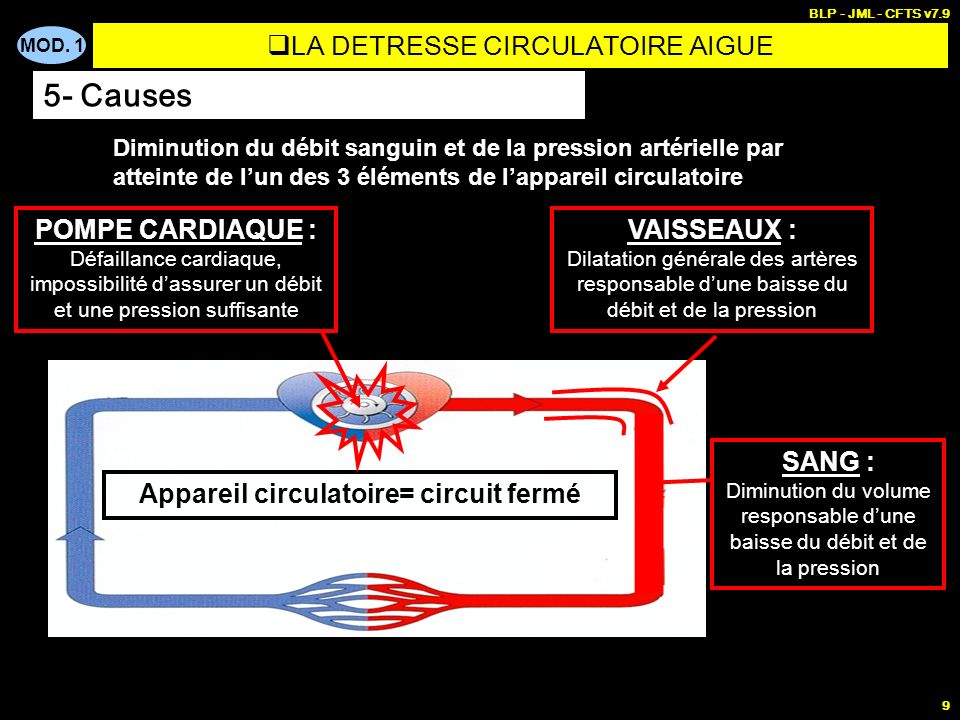 LA DETRESSE CIRCULATOIRE AIGUE