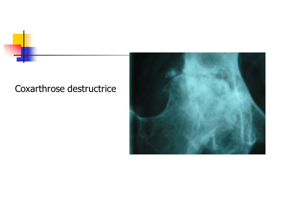 Coxarthrose destructrice