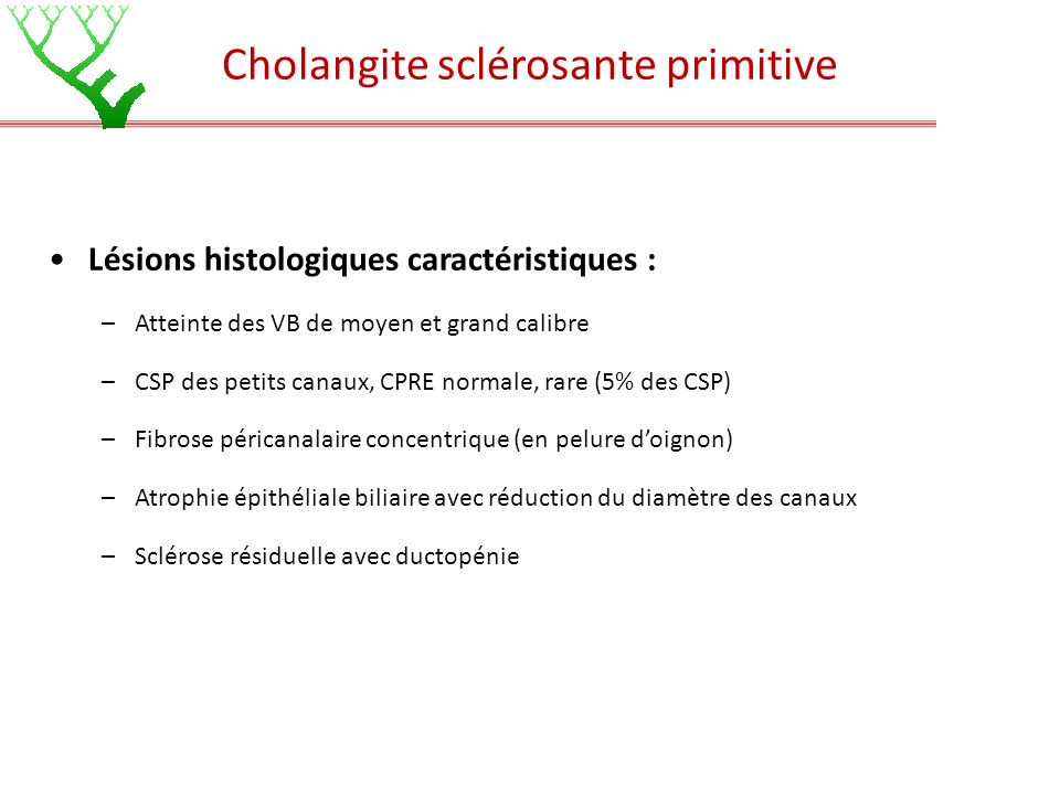 Cholangite sclérosante primitive