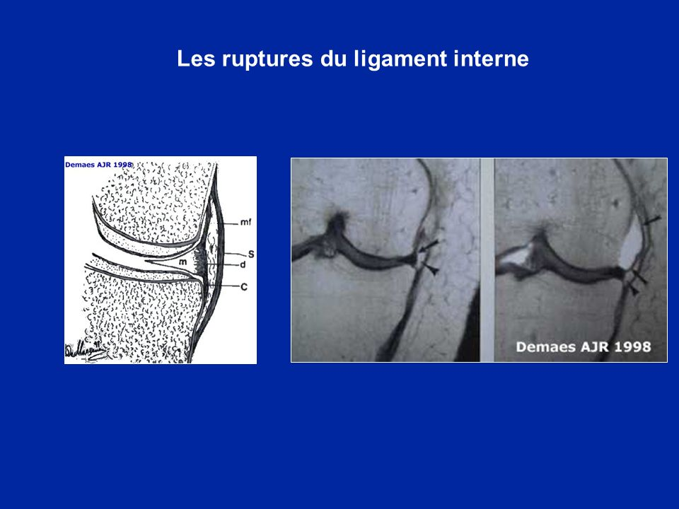 Les ruptures du ligament interne