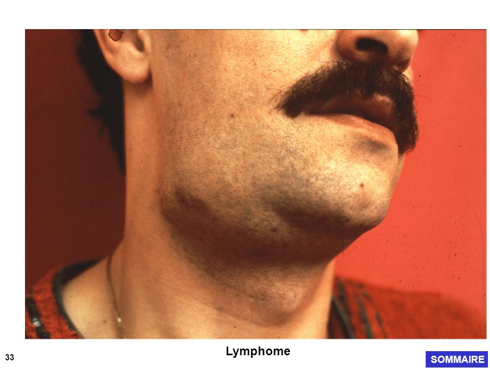 Lymphome 33 SOMMAIRE