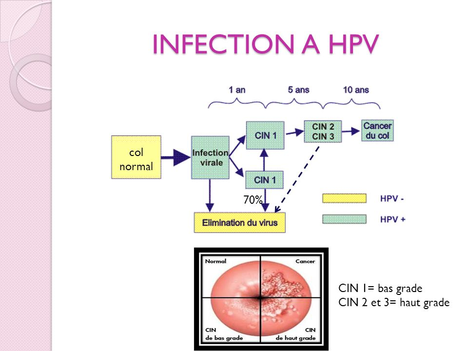 INFECTION A HPV col normal 70% CIN 1= bas grade CIN 2 et 3= haut grade