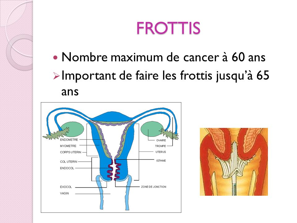 FROTTIS Nombre maximum de cancer à 60 ans