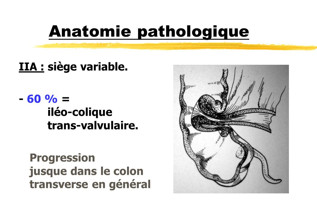 Anatomie pathologique