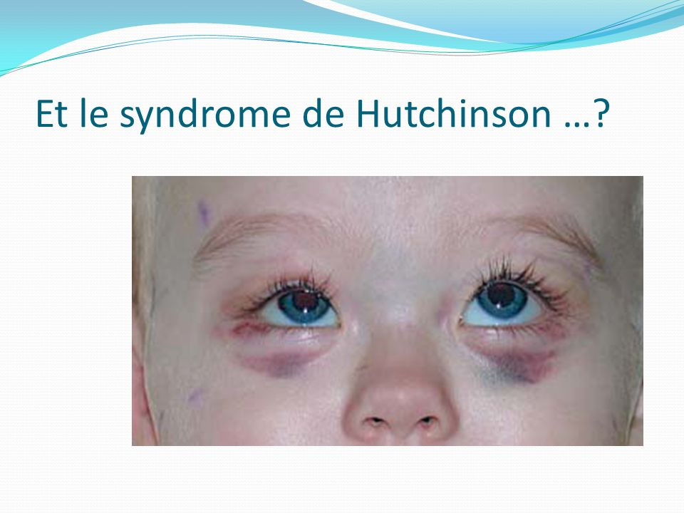 Et le syndrome de Hutchinson …