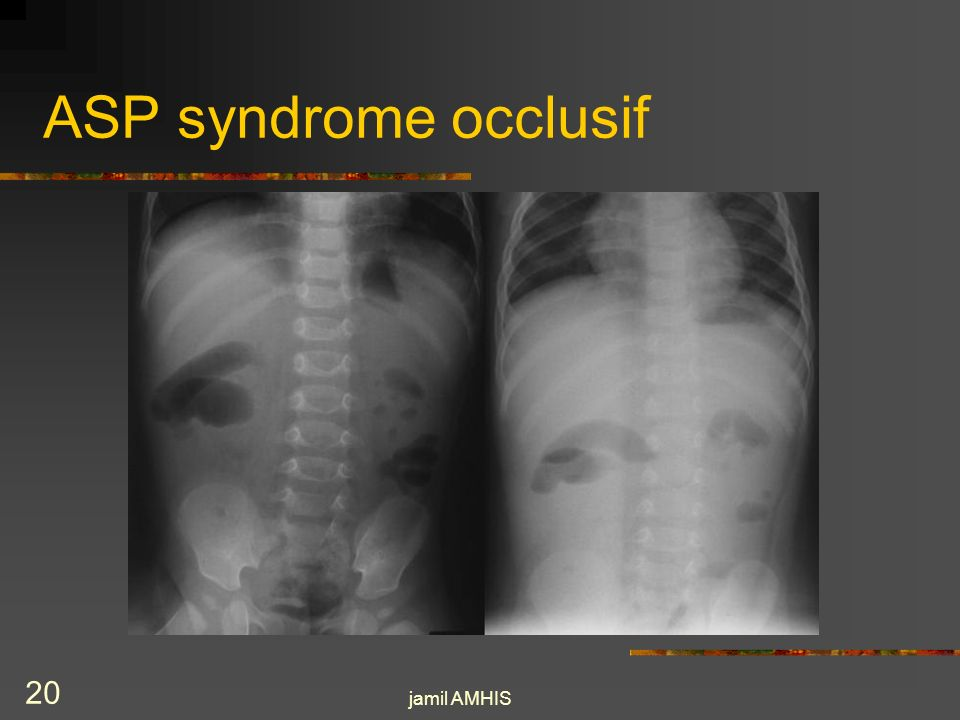 ASP syndrome occlusif jamil AMHIS