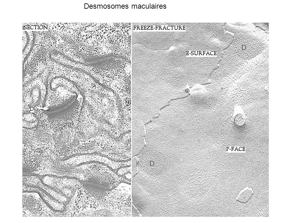 Desmosomes maculaires