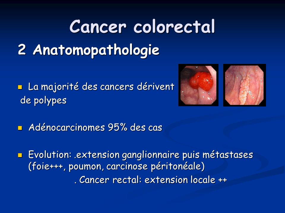 Cancer colorectal 2 Anatomopathologie La majorité des cancers dérivent