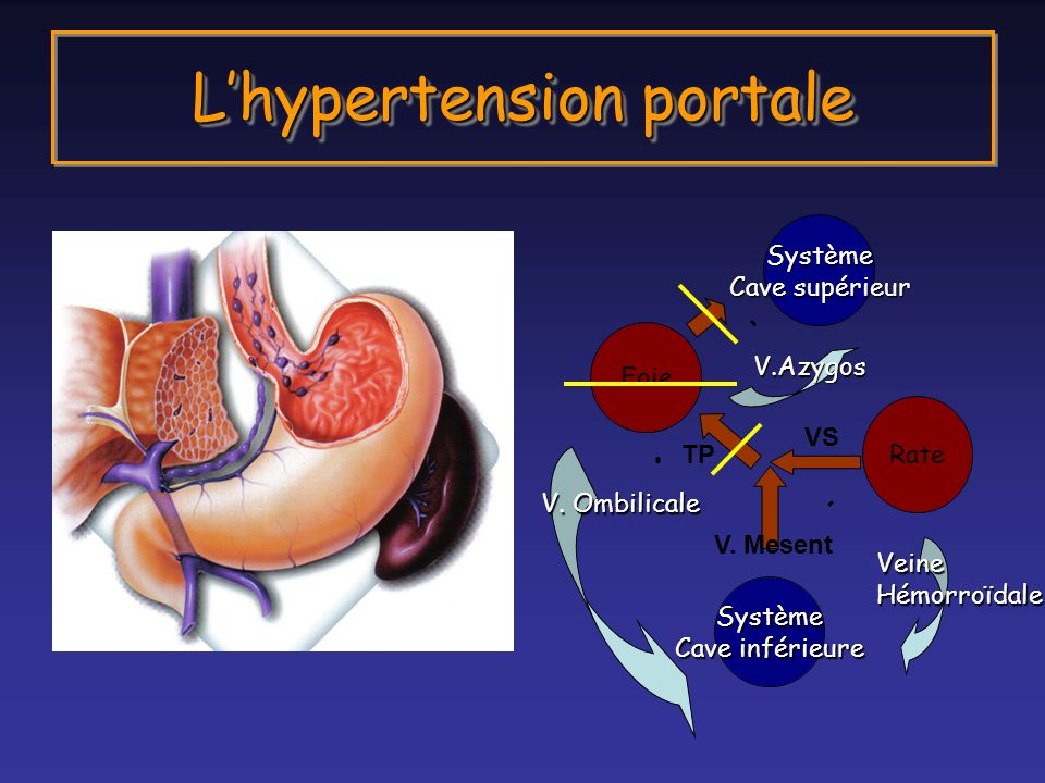 L'hypertension portale